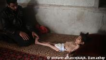 07.12.2017 DAMASCUS, SYRIA - DECEMBER 07: An 8-year-old Syrian girl Ravan is seen lying on the bed at her house in besieged Damascus suburb of Eastern Ghouta, Syria on December 07, 2017. Due to the malnutrition and lack of healthcare, she rapidly fell 8 kilos and struggles with many illnesses from paralysis of the brain to cirrhosis. Anas Damashqy / Anadolu Agency | Keine Weitergabe an Wiederverkäufer.