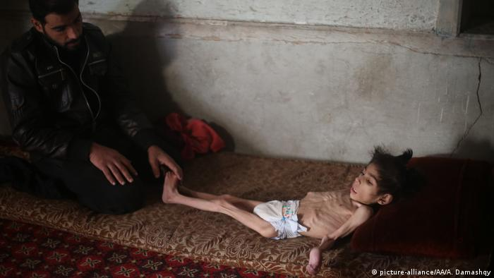 Dozens of children in Eastern Ghouta, including 8-year-old Syrian girl Ravan, has witnessed their health condition worsen due to malnutrition and lack of health care