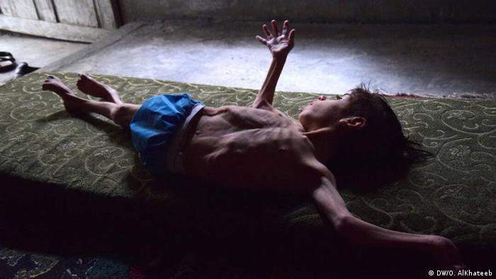 Riwan al-Nasser lies on a mattress in Eastern Ghouta, Syria