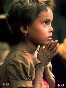 Junge Leprakranke in Indien, Quelle: Ap