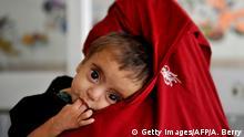 Symbolbild Unterernährung bei Kleinkindern