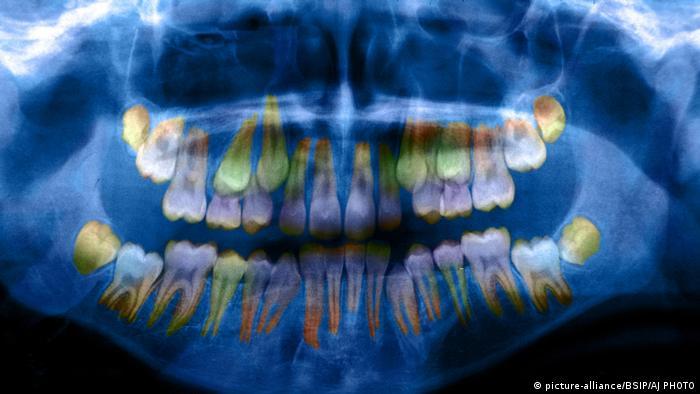 Röntgenaufnahme eines Gebisses