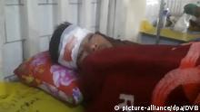 ***Achtung: Videostill, schelchte Bildqualität! Bitte nicht als Artikelbild verwenden!**** 16.01.2018****Ein Mann liegt mit einer Kopfwunde am 16.01.2018 in einem Krankenhaus (Aufnahme aus einem Video), nachdem er angeblich an einer Konfrontation mit der Polizei in Mrauk-U, Rakhine, Myanmar, beteiligt war. Bei schweren Krawallen im Vielvölkerstaat Myanmar sind nach offiziellen Angaben mindestens sieben Menschen von der Polizei getötet worden. Nach Angaben der Regierung des westlichen Bundesstaats Rakhine kam es zu denAuseinandersetzungen infolge einer Kundgebung, mit der in der früheren Provinz-Hauptstadt MraukU an das Ende der dortigen Arakan-Dynastie 1784 erinnert werden sollte. Bei den Toten soll es sich um Buddhisten handeln. Foto: Uncredited/DVB/dpa +++(c) dpa - Bildfunk+++  
