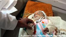 (180116) -- SANAA, Jan. 16, 2018 () -- A malnourished child receives medical treatment at a hospital in Sanaa, Yemen, on Jan. 15, 2018. More than 3 million children have been born in Yemen since conflict escalated in March 2015, and they've since faced violence, displacement, disease, poverty, under-nutrition not to mention lack of access to water, health care and education, according to a UNICEF report released Tuesday. (/Mohammed Mohammed) |