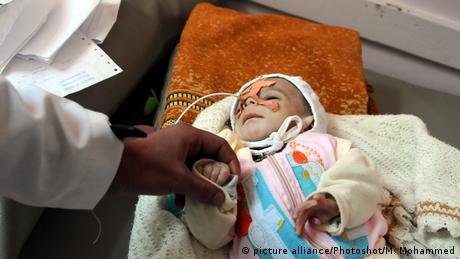 Jemen Sanaa Unterernährte Kinder (picture alliance/Photoshot/M. Mohammed)