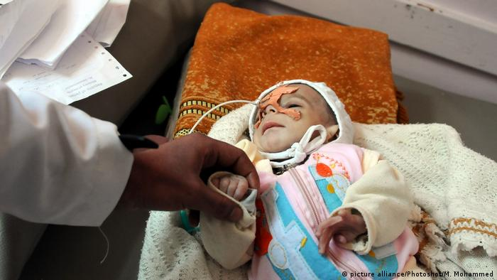 A mal-nourished child in Yemen