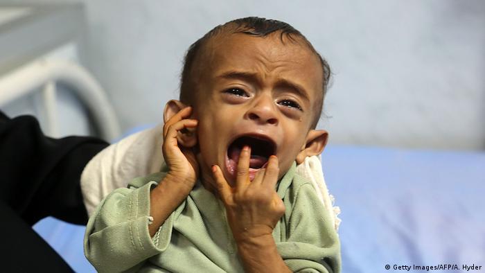 عدم دسترسی به کمکهای بشردوستانه و دارویی از دیگر مشکلاتی است که یمن با آن دست و پنجه نرم میکند. طبق گزارش صندوق نجات کودکان، شمار کودکانی که از حق دسترسی به کمکهای بشردوستانه محروم هستند، از سال ۲۰۱۰ تا کنون پانزده برابر شده است.