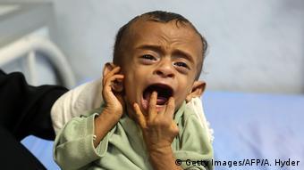 Jemen Hodeidah Unterernährte Kinder