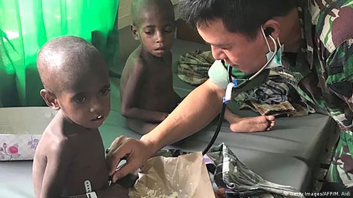Indonesien Rund hundert Masern-Tote in Papua befürchtet (Getty Images/AFP/M. Aidi)