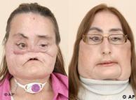 امريکہ ميں پورے چہرے کی تبديلی کا آپريشن کرانے والی کونی کلپ: دسمبر سن 2008