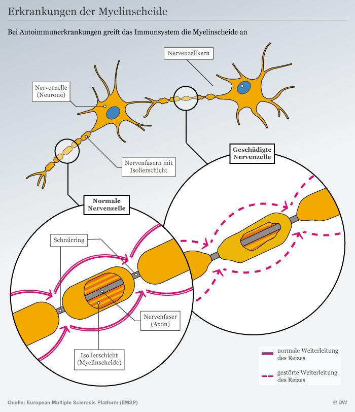 Infografik Erkrankungen der Myelinscheide DEU