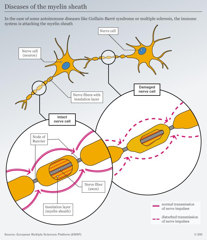 Infografik Erkrankungen der Myelinscheide ENG