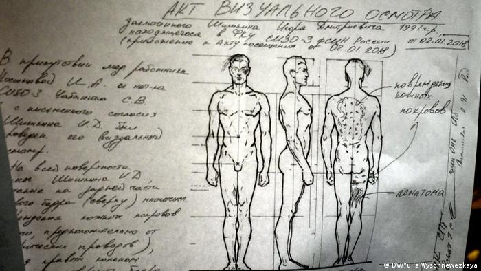 Следы пыток на теле заключенных (рисунок сделан правозащитниками)