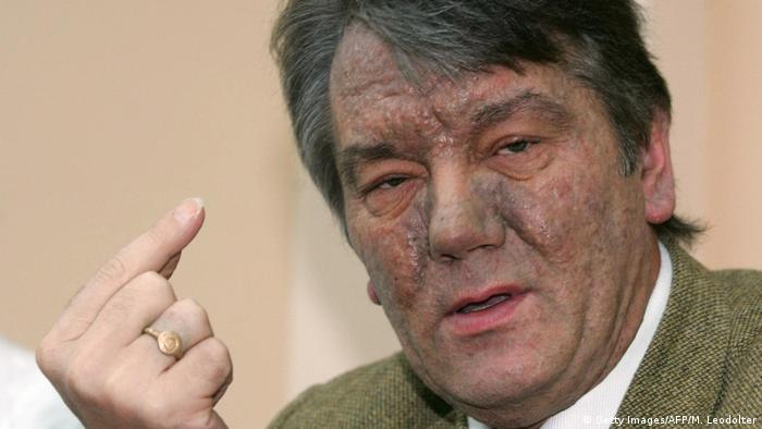 Viktor Yushchenko (Getty Images/AFP/M. Leodolter)