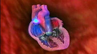 10.06.2009 DW-TV Fit und Gesund Herzrythmusstoerung 01