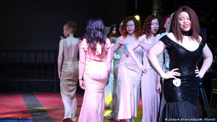 The contestants of the Miss Albinism contest on stage