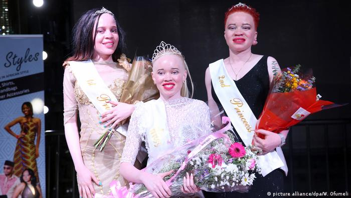 The winner and two runners up of the Miss Albinism pageant hold flowers on stage