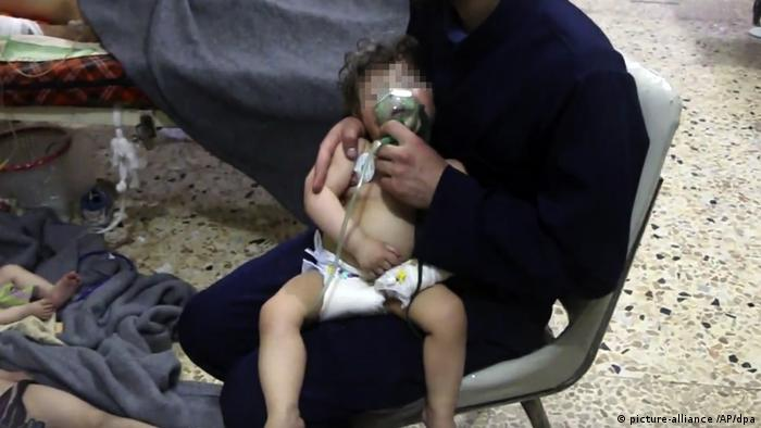 An infant being treated following exposure to chemical weapons (picture-alliance /AP/dpa)