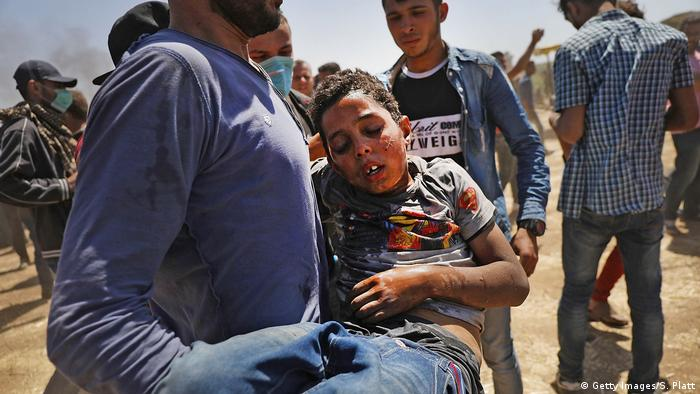 تعداد زیادی کودک و نوجوان در میان کشتهشدگان و زخمیهای تظاهرات فلسطینیها دیده میشوند
