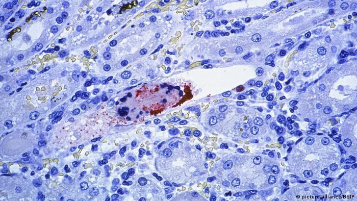 Bildergalerie Nipah-Virus (picture-alliance/BSIP)