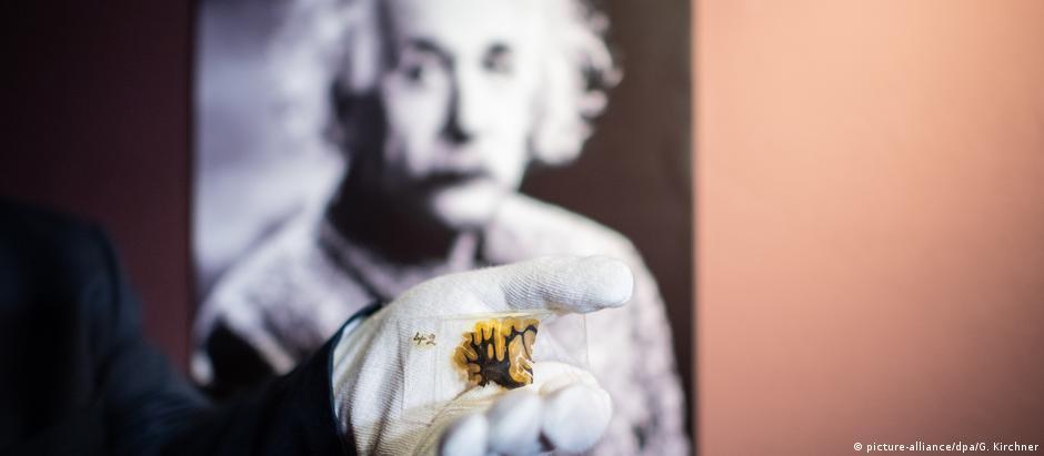 Um fragmento do cérebro de Einstein: chave para compreender a genialidade?