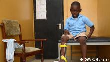 In Westafrika werden Fehlstellungen von Armen und Beinen oft als Fluch angesehen. Betroffene leiden unter der Stigmatisierung, aber auch darunter, dass es nur wenige Korrekturmöglichkeiten für die oft schmerzenden Gliedmaßen gibt. Der Einsatz von 3D-Druckern soll das ändern und sogar Menschen in entlegenen Gebieten erreichen.