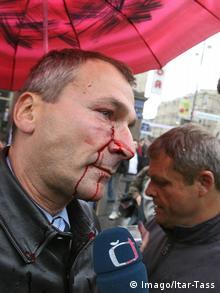 Folker Bek nakon napada u Moskvi 2006.