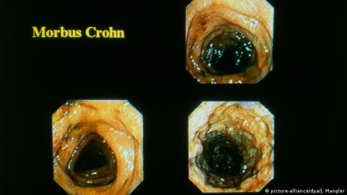 Morbus Crohn (picture-alliance/dpa/J. Mangler)