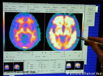 مقایسه مغز فرد بیمار مبتلا به آلزامیر (راست)و فرد سالم