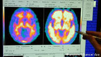 scan pictures of two brains, one healthy, one affected by Alzheimer's