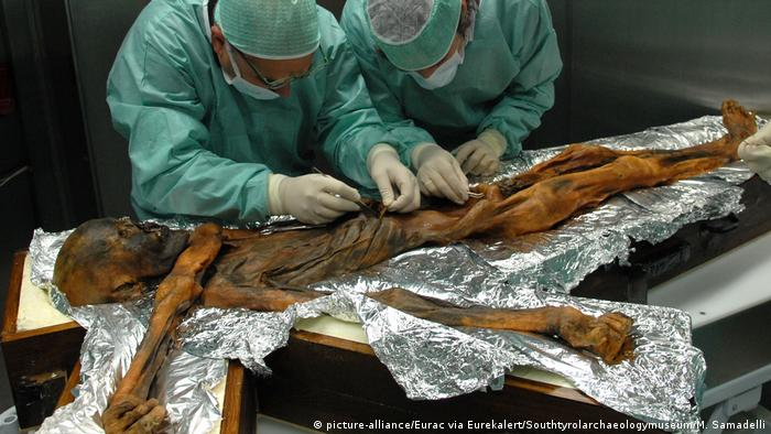 Scientists examine Ötzi's stomach