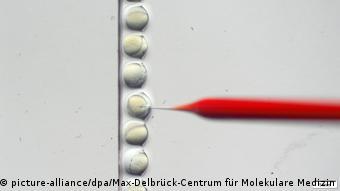 Mikroinjektion (picture-alliance/dpa/Max-Delbrück-Centrum für Molekulare Medizin)