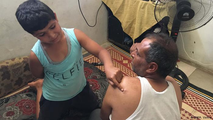 A boy pointing to a wound on his father's shoulder