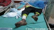 09.08.2018, Jemen, Saada: Ein jemenitischer Junge wird medizinisch versorgt, nachdem er einen Luftangriff auf einen Schulbus überlebt hat. Bei einem Luftangriff auf einen Schulbus im Jemen sind nach Angaben des Internationalen Komitees vom Roten Kreuz (IKRK) mindestens 50 Menschen getötet worden, die meisten davon Kinder und Teenager. Weitere 77 Menschen seien verletzt worden, sagte der Sprecher des Gesundheitsministeriums, al-Hadri, der Deutschen Presse-Agentur. Das Ministerium, das von schiitischen Huthi-Rebellen geführt wird, macht ebenso wie der Iran das von Saudi-Arabien geführte Militärbündnis für den Angriff nördlich der Hauptstadt Sanaa verantwortlich. Foto: Abdulkareem Al-Zarai/dpa +++ dpa-Bildfunk +++ | Verwendung weltweit