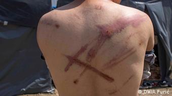Muškarac s ozljedama na leđima