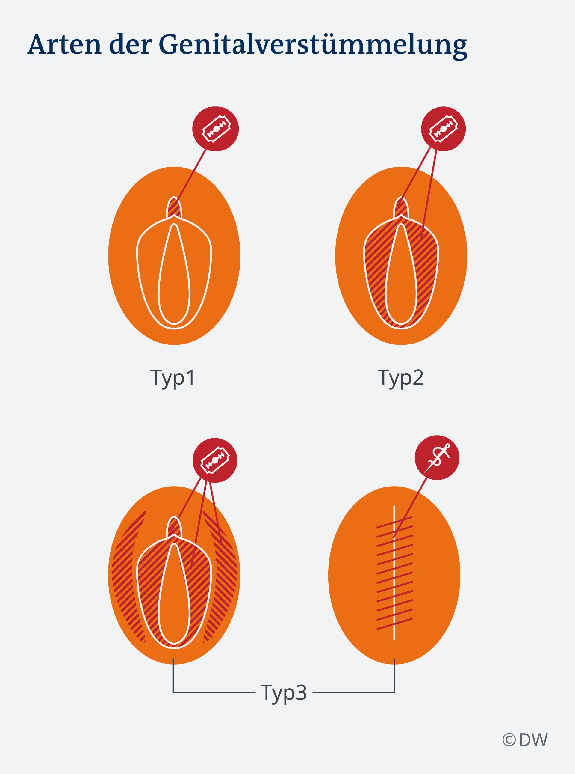 Erfahrungsbericht beschneidung Genitalverstümmelung: Eine