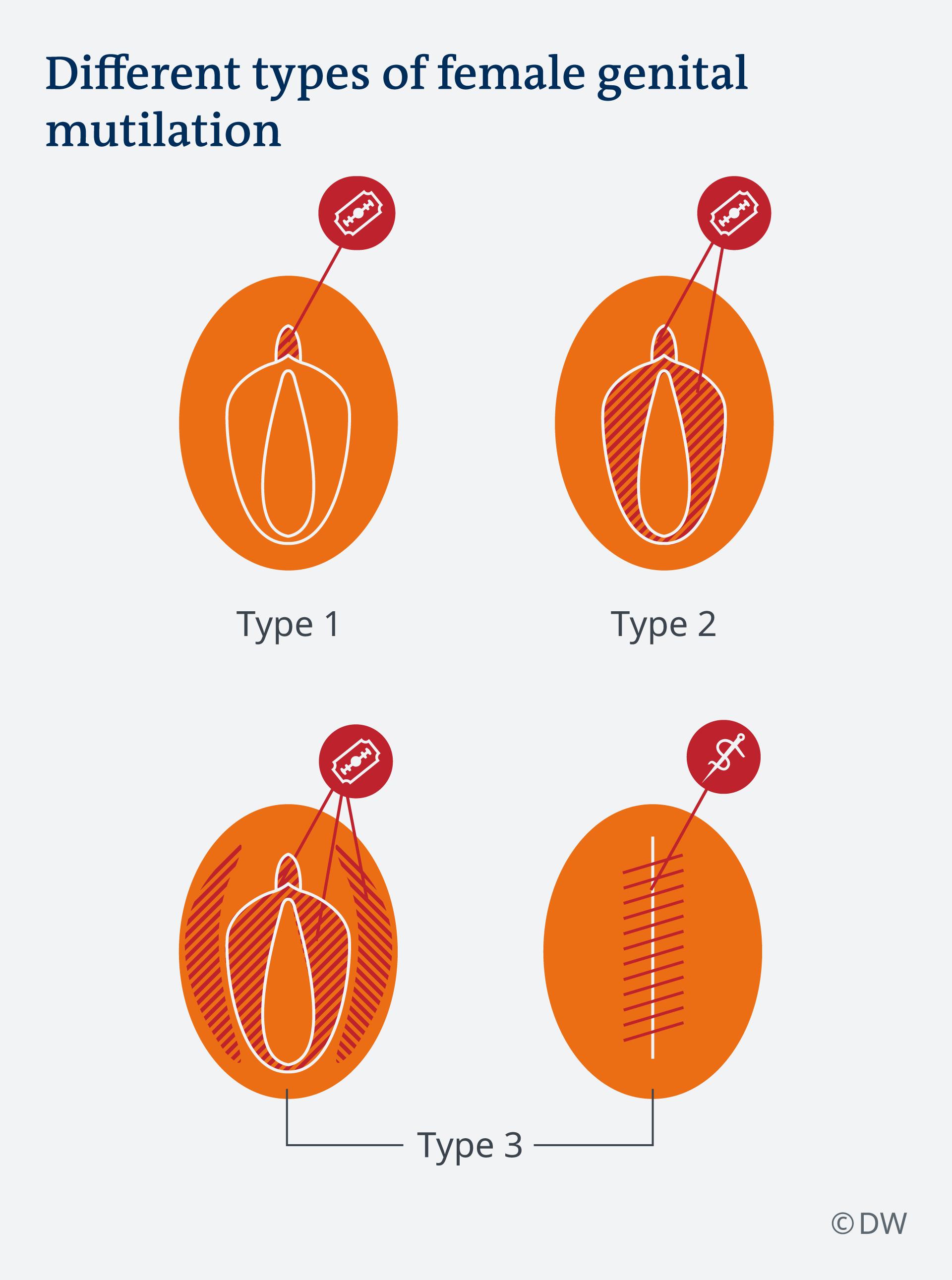 Infografik Arten der Genitalverstümmelung EN