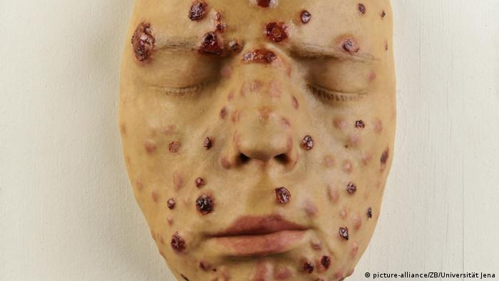 A wax model face showing the syphilis infection