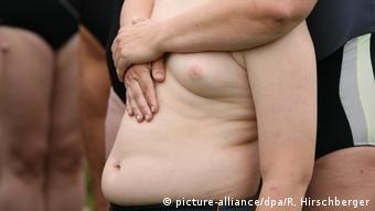 Ребенок с ожирением