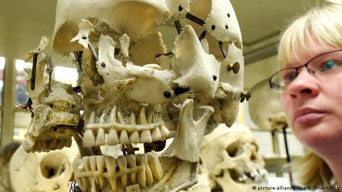 Череп, що вибухнув, з колекції Інституту анатомії університету Галле