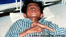 A severly malnourished 15-year-old lies in a hospital bed in Wonsan City 22 October 1998 in the famine-stricked North Korea. School aged children are not commonly targeted by international aid, and when food aid does arrive, it is often too late. dpa Poolbild |