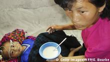 Nordkorea - Pyeongjang - Unterernährtes Kind