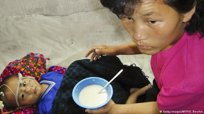 A malnourished North Korean child, aged 3, is fed a vitamin and mineral-enriched porridge supplied by the United Nations World Food Programme