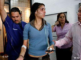 Radicales chavistas atacan la sede de Globovisión.