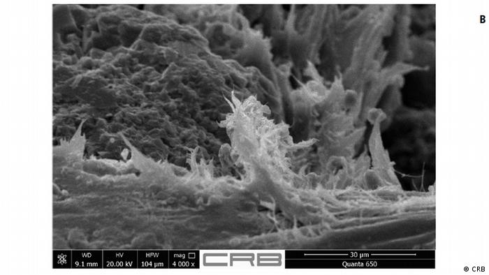 Fibres de chrysotile au microscope électronique