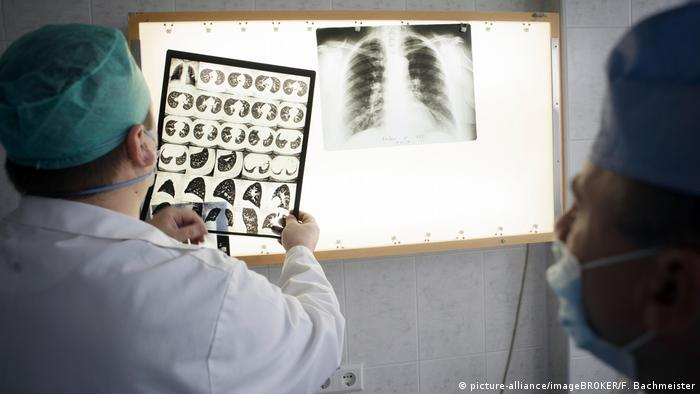 A doctor in the Republic of Moldova looking at an X-ray of a tuberculous lung.