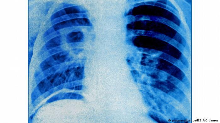Röntgenbild Tuberkulose (picture-alliance/BSIP/C. James)