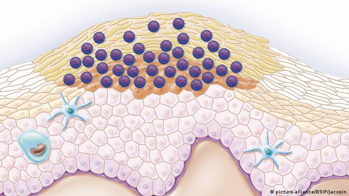 Illustration of gential warts caused by HPV