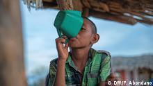 Weltkindertag / Kindersterblichkeit wegen Unterernährung / Die seit Monaten nicht überwundene Hungerkrise im kolumbianischen La Guajira im äußersten Nordosten Kolumbiens hat auch im laufenden Jahr wieder vielen Kindern der Wayuu-Indígenas das Leben gekostet. 2018 seien bereits 16 indigene Minderjährige an den Folgen von Unterernährung gestorben, schlug Kolumbiens Menschenrechtsombudsmann Carlos Alfonso Negret am Dienstag, den 3. April 2018, in einem Schreiben an die Regierung Alarm. Foto Copyright: Felipe Abondano / DW