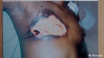 След болезнената процедура с нагорещена шпакла